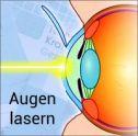 Augen lasern lassen - Kosten?