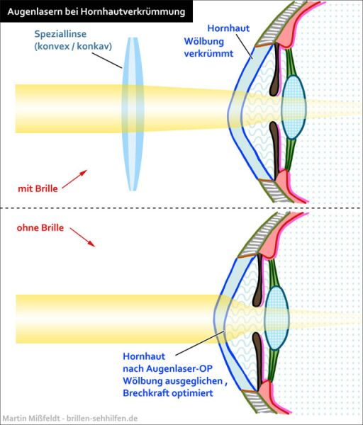 Augenlasern bei Hornhautverkrümmung