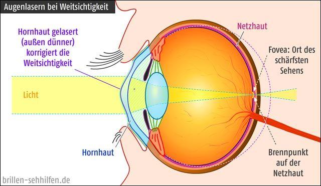 Augenlasern bei Weitsichtigkeit