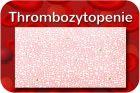 Thrombopenie
